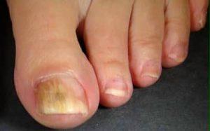can toenail fungus kill you
